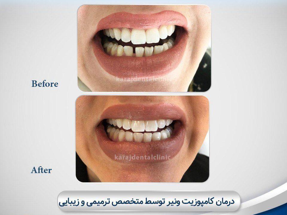 photo 2020 04 05 14 46 29 960x720 - نمونه درمانی اصلاح طرح لبخند
