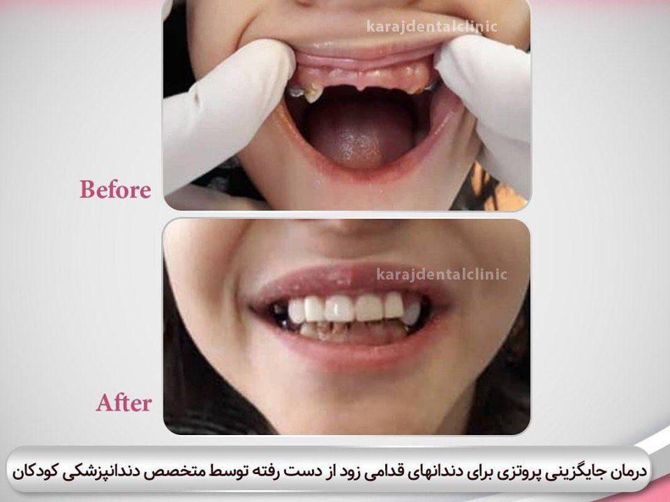 photo 2020 04 05 14 46 41 960x720 - نمونه درمانی دندانپزشکی کودکان