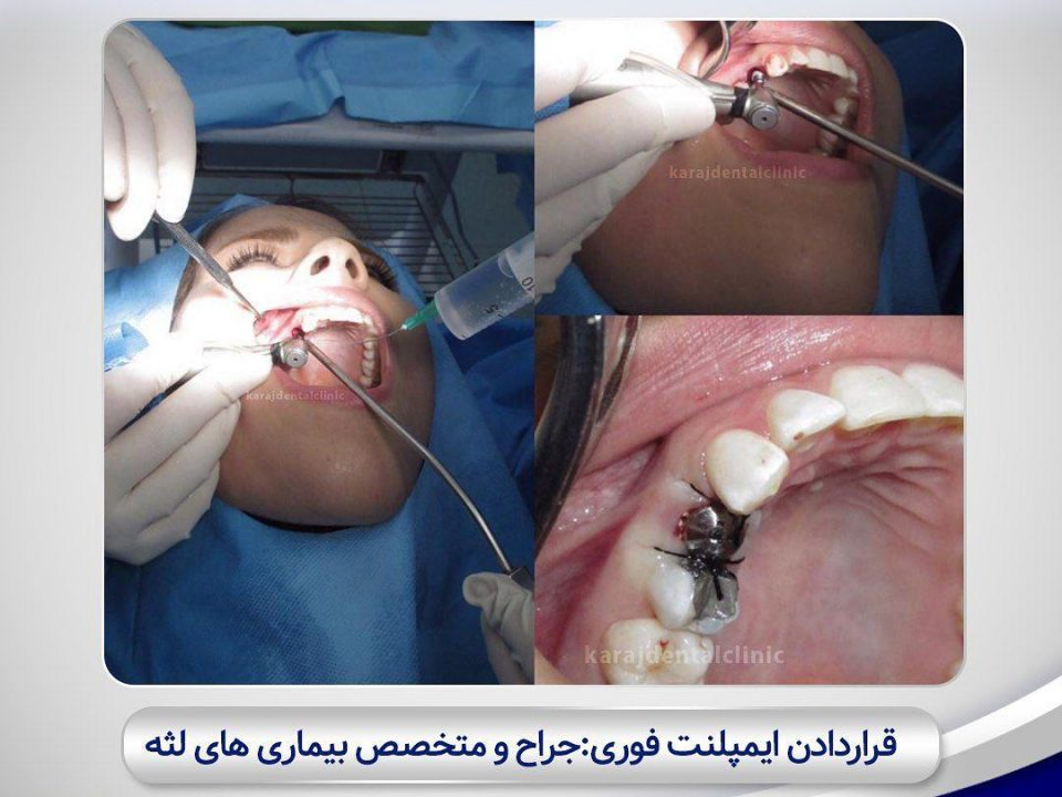 photo 2020 04 05 14 47 20 960x720 - نمونه درمانی کاشت ایمپلنت