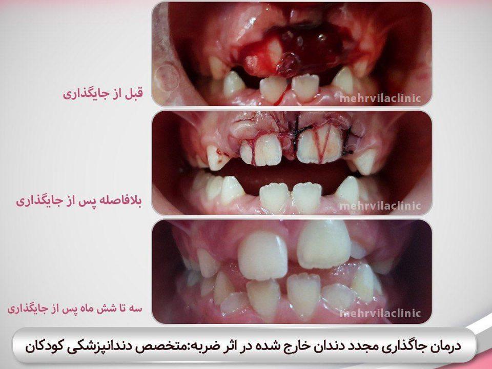 photo 2020 04 05 14 47 28 960x720 - نمونه درمانی دندانپزشکی کودکان
