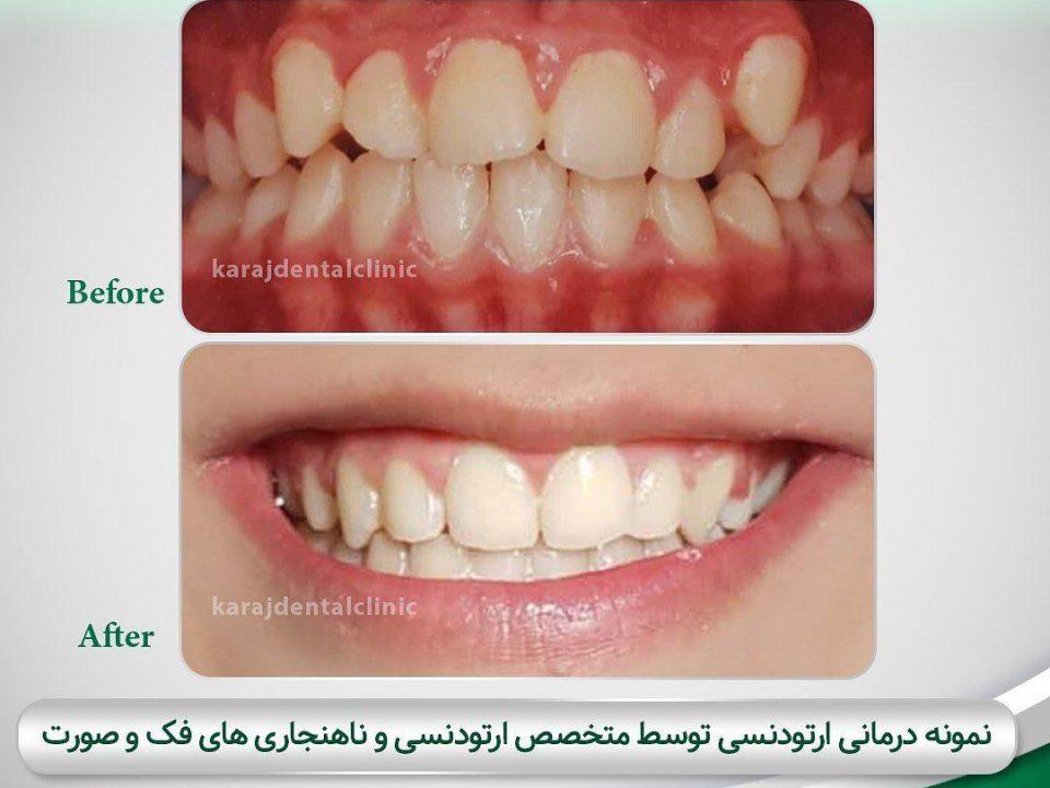 photo 2020 04 05 14 47 31 960x720 - نمونه درمانی ارتودنسی دندان
