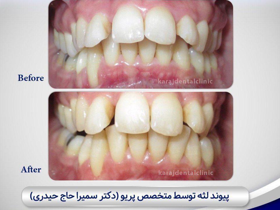 photo 2020 04 05 14 47 37 960x720 - نمونه درمانی تحلیل لثه
