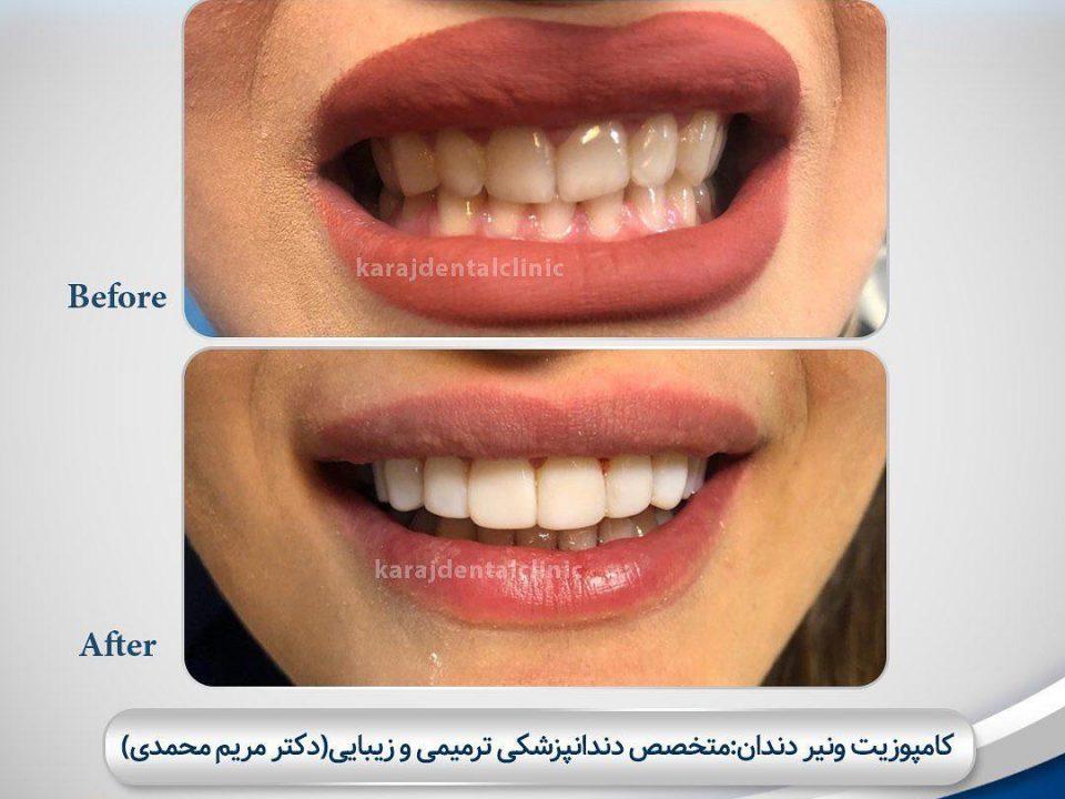 photo 2020 04 05 14 47 43 960x720 - نمونه درمانی کامپوزیت دندان