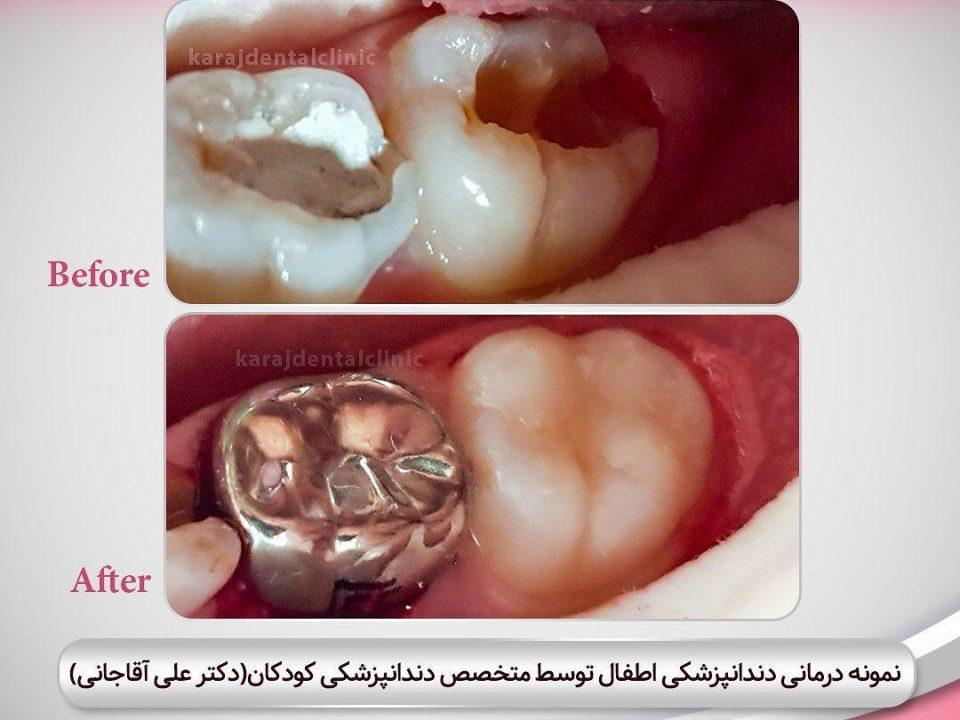photo 2020 04 05 14 47 50 960x720 - نمونه درمانی دندانپزشکی اطفال