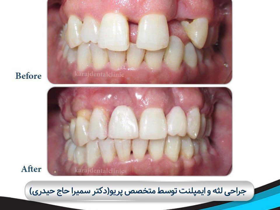 photo 2020 04 05 14 47 58 960x720 - نمونه درمانی جراحی لثه