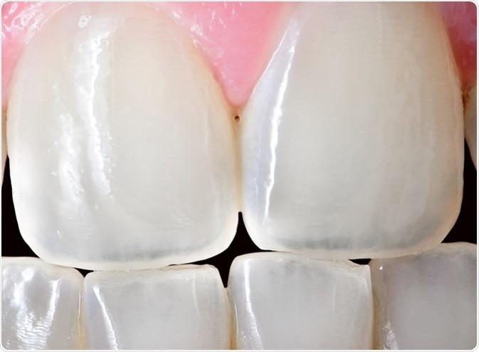 1 - دندان چیست و معرفی انواع مختلف آنها