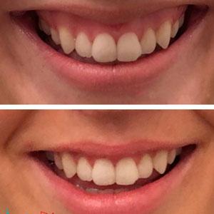 دندانپزشک زیبایی در کرج