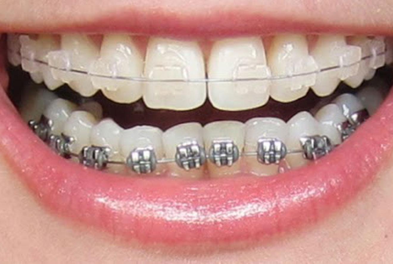 دندانپزشکی اقساطی در کرج