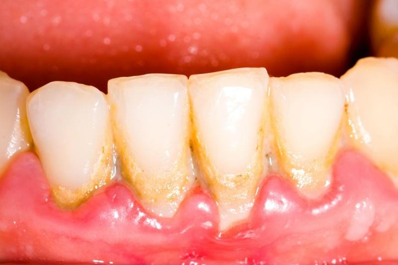 مشکلات دهان و دندان
