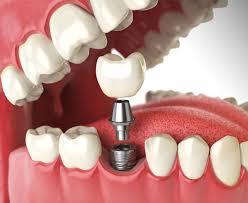 بهترین دندانپزشکی کرج