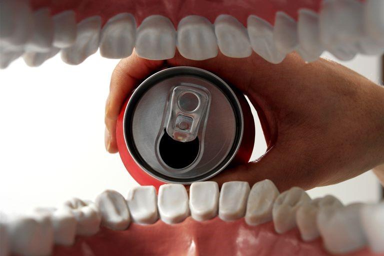 15 - تاثیر نوشابه بر دندان ها