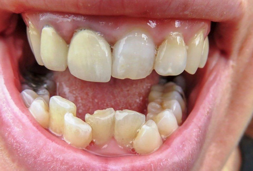 6 960x648 - درمان دندان های کجو نامرتب