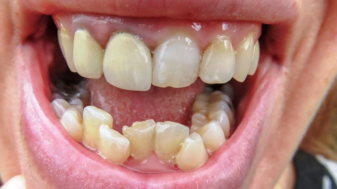 6 - درمان دندان های کجو نامرتب