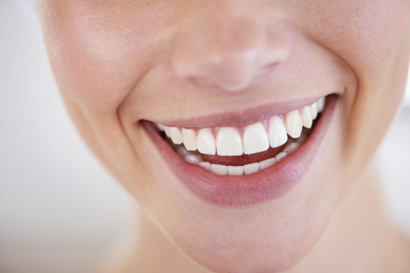 درمان دندان کجو نامرتب