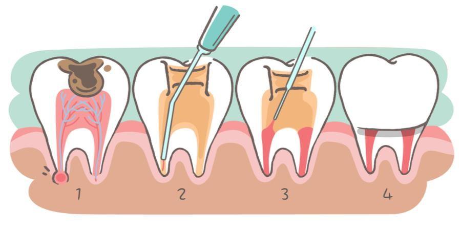1 - عصب کشی دندان چیست و چگونه انجام می شود؟