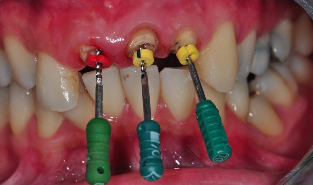 عصب کشی دندان درمان ریشه
