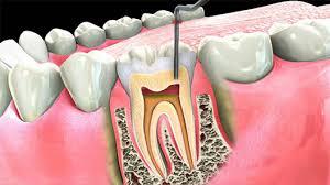 متخصص عصب کشی دندان کرج