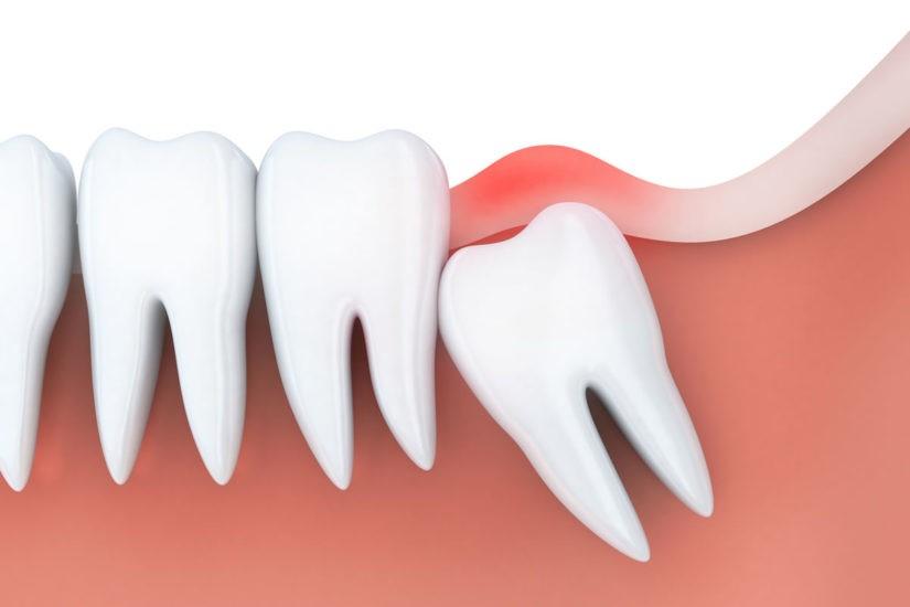 14 - جراحی دندان عقل