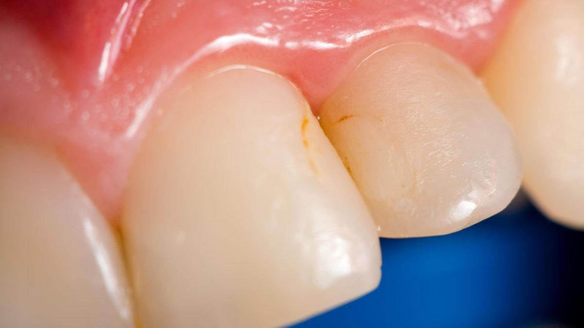 1 2 1200x675 - زرد شدن دندان و روش درمان آن