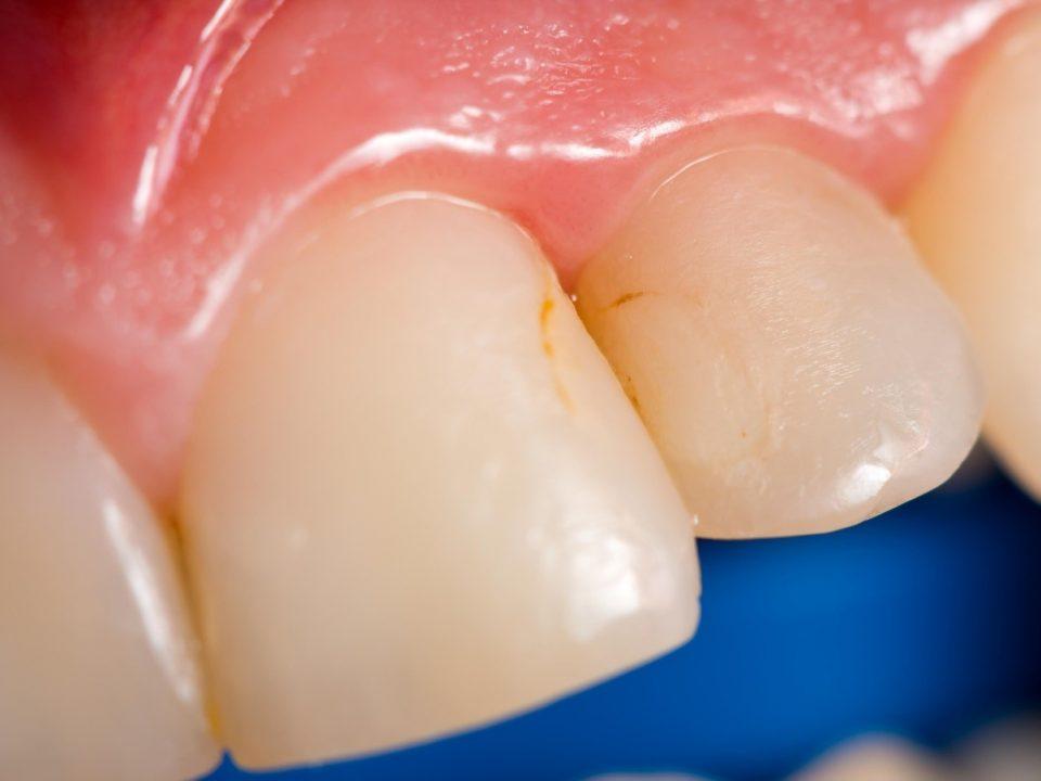 1 2 960x720 - زرد شدن دندان و روش درمان آن