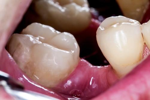 1 - جایگزین دندان از دست رفته را بشناسید