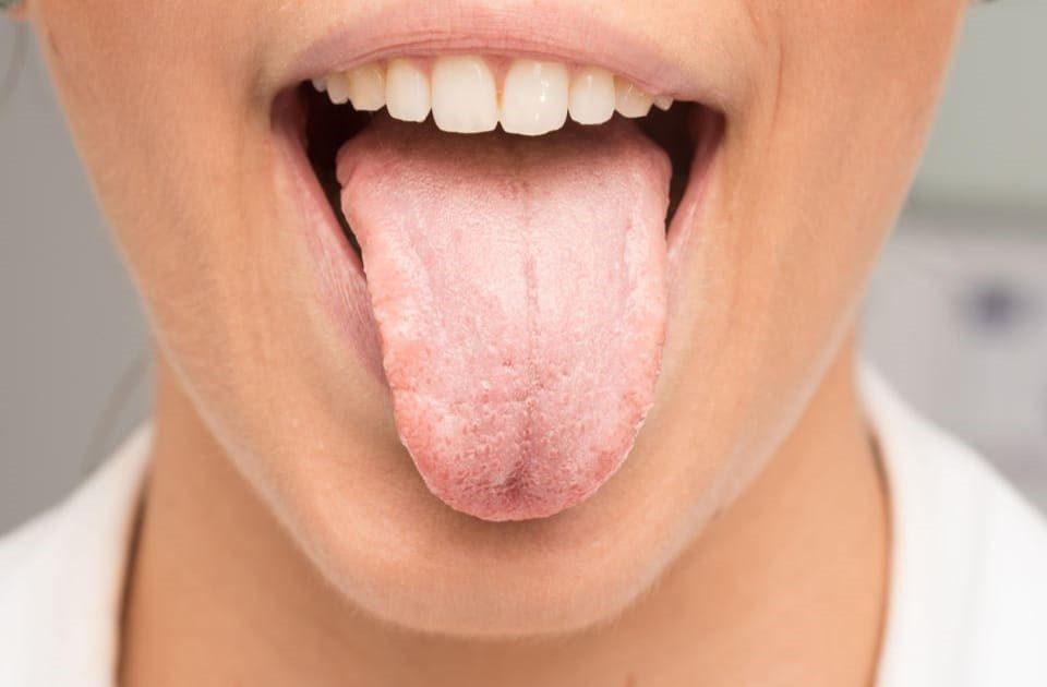 13 960x630 - خشکی دهان و روش های جلوگیری از آن