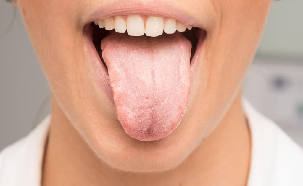 13 - خشکی دهان و روش های جلوگیری از آن