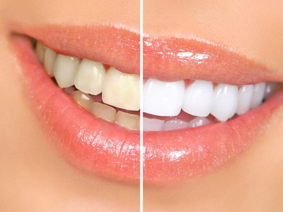 4 1 960x720 - روش های سفید کردن دندان