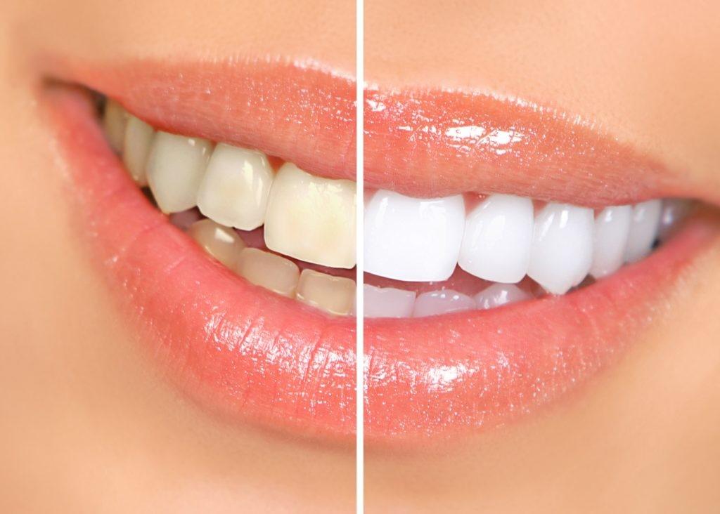 سفید کردن دندان در کرج