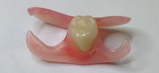 جایگزین دندانهای از دست رفته