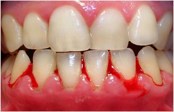 رابطه دهان و سلامتی