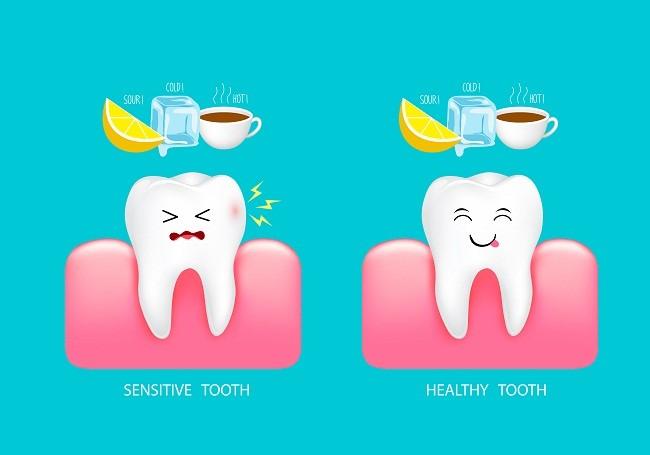 15 - دندان های حساس
