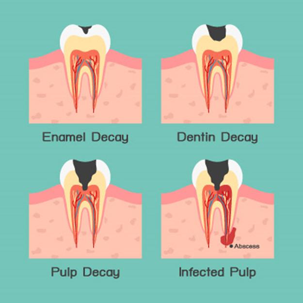 دندان چیست