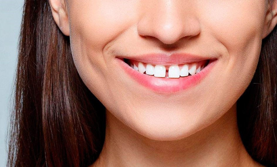 9 - دیاستم یا فاصله بین دندان ها چیست؟