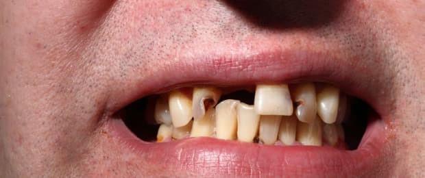 تاثیر نوشیدنیهای الکلی بر دندان