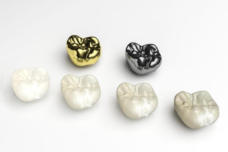 22 - چه موادی برای ساخت روکش دندان استفاده می شوند؟