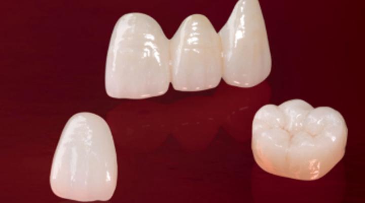 مواد روکش دندانی