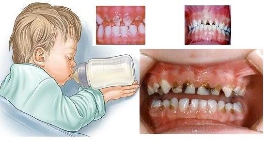 پوسیدگی و حفره های دندانی