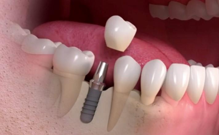 19 - آنچه باید در مورد ایمپلنت های دندانی بدانید