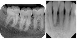 رادیوگرافی دندانپزشکی