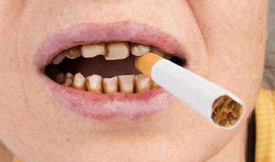 سیگار و سلامت دهان و دندان