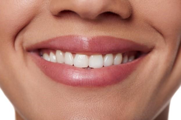 19 - کانتور یا تراش دندان ها