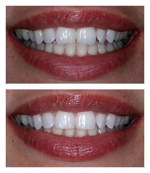 کانتور یا تغییر شکل دندان