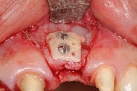 پیوند استخوان برای کاشت ایمپلنت دندانی