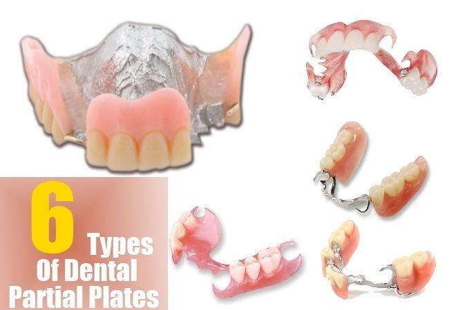 پروتزهای مصنوعی دندان های از دست رفته
