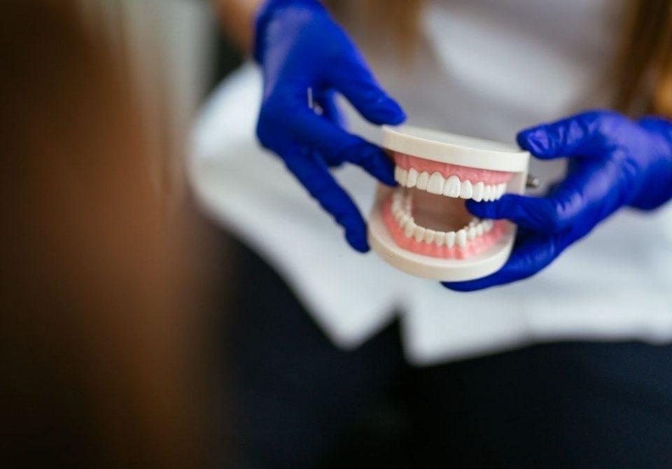 9 1 960x670 - پروتزهای مصنوعی جایگزینی برای دندان های از دست رفته