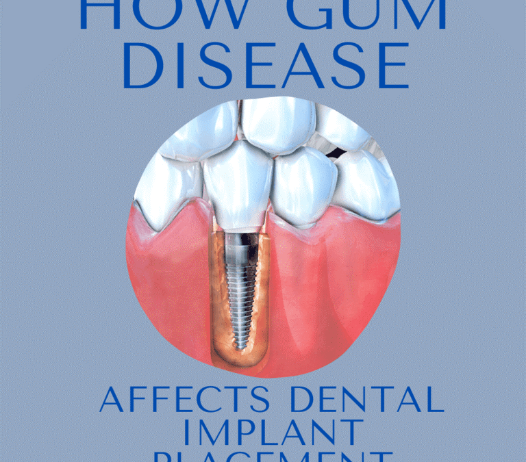2 768x675 - آیا کاشت ایمپلنت های دندانی با بیماری لثه ممکن است؟