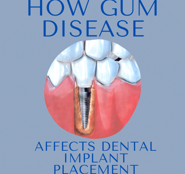 2 768x720 - آیا کاشت ایمپلنت های دندانی با بیماری لثه ممکن است؟