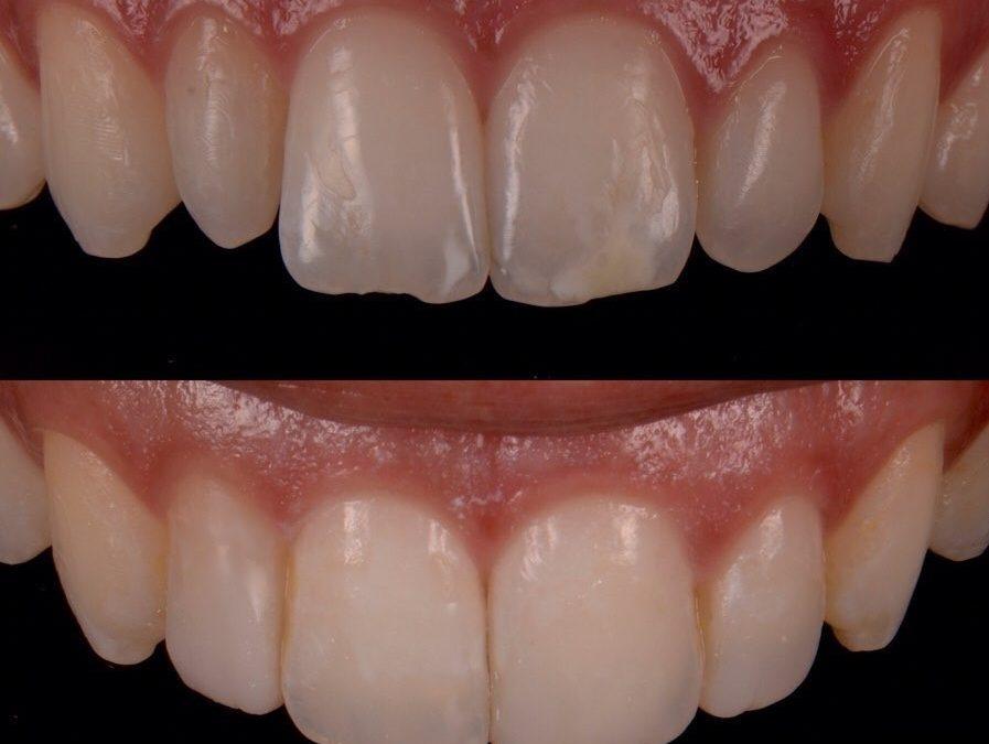 6 897x675 - کامپوزیت باندینگ دندان چیست؟