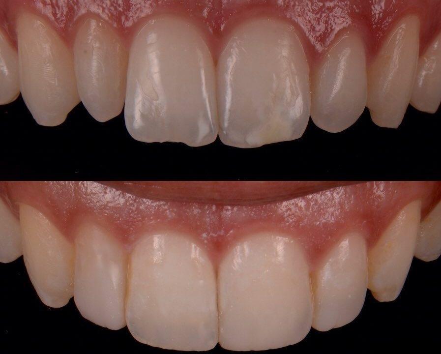 6 897x720 - کامپوزیت باندینگ دندان چیست؟